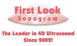 First Look Sonogram